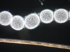 Fünf hell leuchtende Thiomagerita Zellen neben einem menschlichen Haar_MPI Bremen
